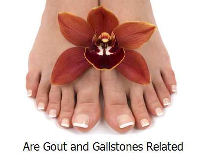 Are Gout and Gallstones Related?