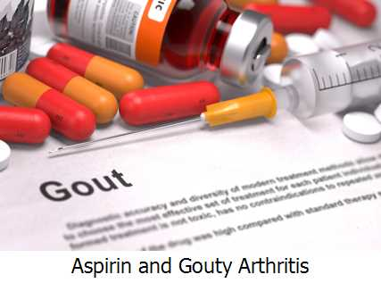 Aspirin and Gouty Arthritis