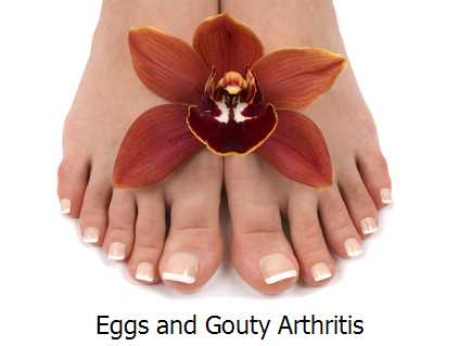 Eggs and Gouty Arthritis