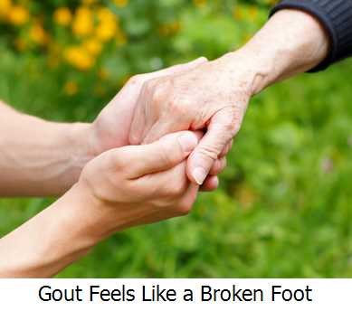 Gout Feels Like a Broken Foot