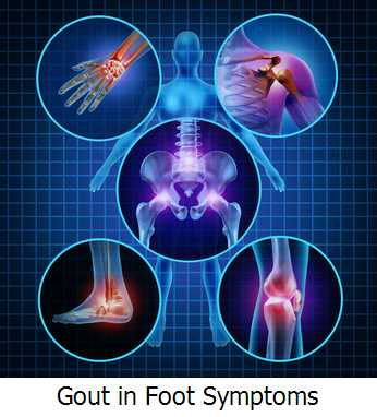 Gout in Foot Symptoms