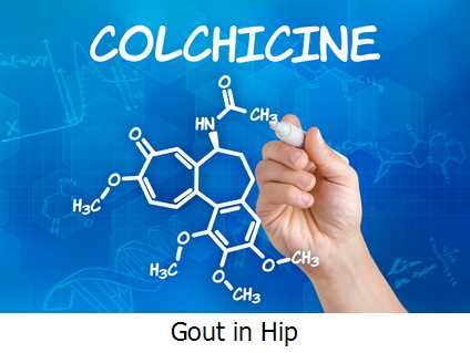 Gout in Hip