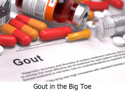 Gout in the Big Toe