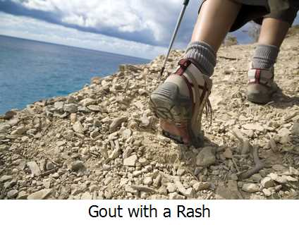Gout with a Rash