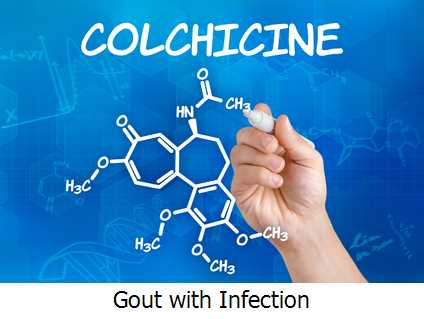 Gout with Infection