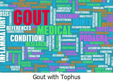 Gout with Tophus