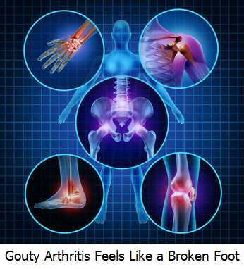Gouty Arthritis Feels Like a Broken Foot
