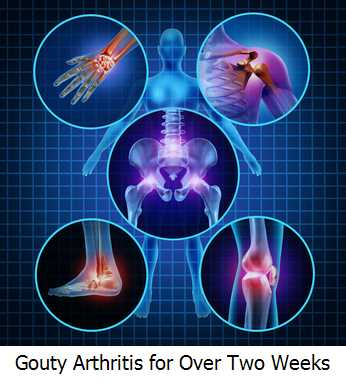 Gouty Arthritis for Over Two Weeks