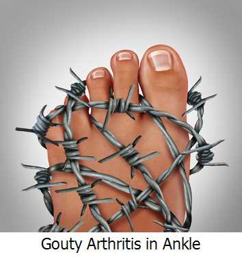 Gouty Arthritis in Ankle