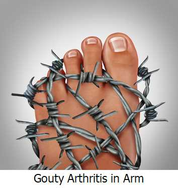 Gouty Arthritis in Arm
