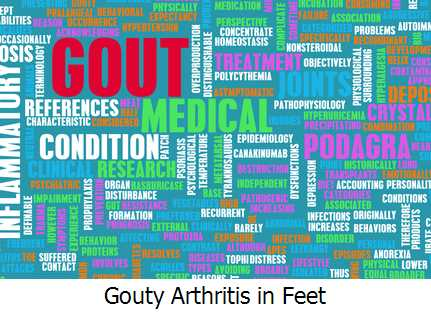 Gouty Arthritis in Feet