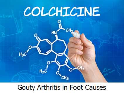 Gouty Arthritis in Foot Causes