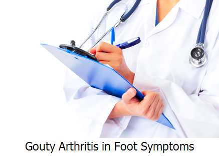 Gouty Arthritis in Foot Symptoms