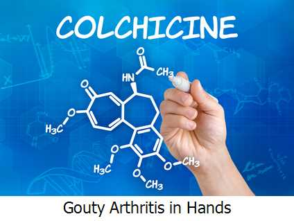 Gouty Arthritis in Hands