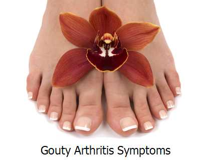 Gouty Arthritis Symptoms