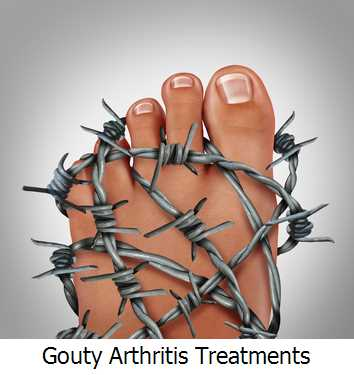 Gouty Arthritis Treatments