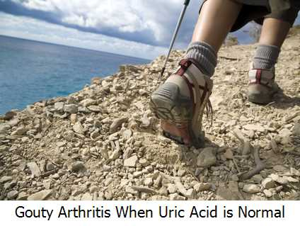 Gouty Arthritis When Uric Acid is Normal?