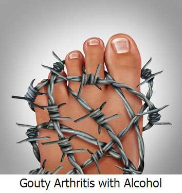 Gouty Arthritis with Alcohol