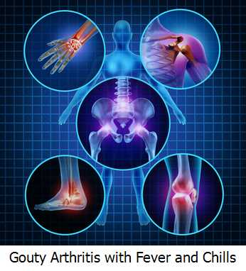 Gouty Arthritis with Fever and Chills