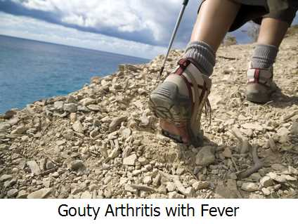 Gouty Arthritis with Fever