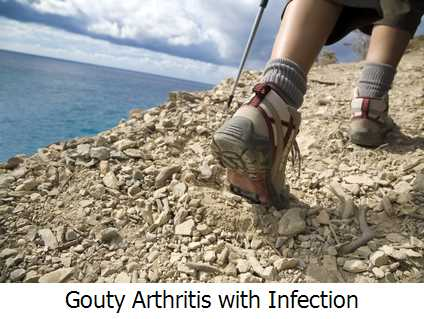 Gouty Arthritis with Infection