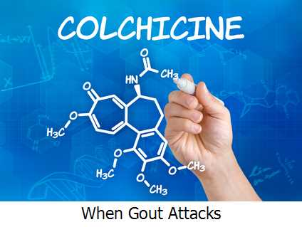 When Gout Attacks?