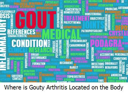 Where is Gouty Arthritis Located on the Body?