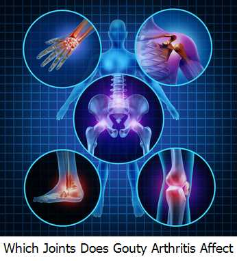Which Joints Does Gouty Arthritis Affect?