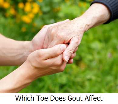 Which Toe Does Gout Affect?