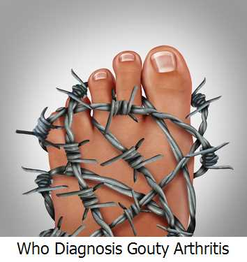 Who Diagnosis Gouty Arthritis?