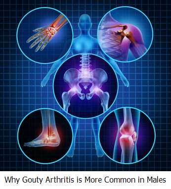 Why Gouty Arthritis is More Common in Males?
