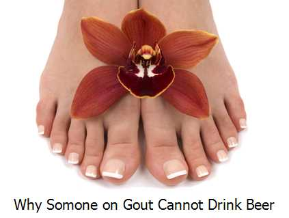 Why Somone on Gout Cannot Drink Beer?